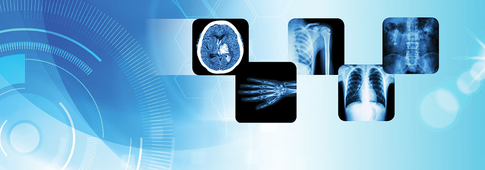 Radiology-Reports-on-ContributionSpace
